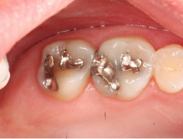 Traditional Mercury Fillings