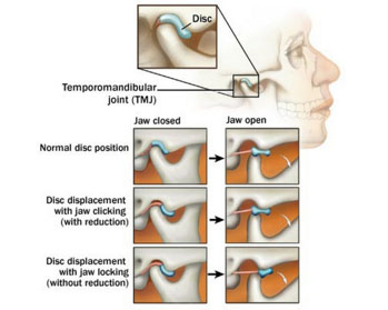 Tmj Tmd Health Overview Bechtel Dentistry